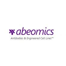 Abeomics/Monoclonal Antibody to Ebola GP I (Clone: ABM47F9)/25 µg/10-10022