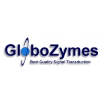 GloboZymes/Pyruvate Dehydrogenase Complex (PDC)/50μg/GLO124-050