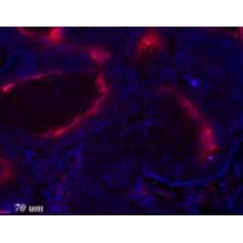 hypoxyprobe/Hypoxyprobe-PAb27 Kit (1000 mg pimonidazole HCl plus 2 units of Rabbit IgG1 High Titer monoclonal antibody)/1000 mg pimonidazole HCl plus 2 units of Rabbit IgG1 High Titer monoclonal antibody/hp12-1000kit