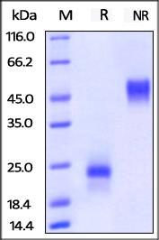 ACROBiosystems/Biotinylated Human VEGF165 Protein, His,Avitag™/25ug/VE5