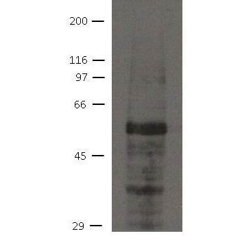 Immuquest/Ajuba Antibody [21G4]/0.1ml/IQ583