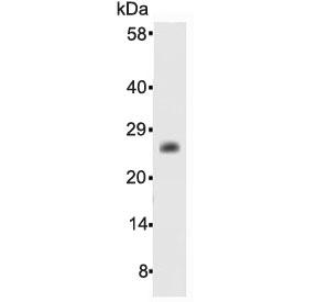 NSJ Bioreagents/Bcl-2 Antibody (R30105)/100 ug/R30105