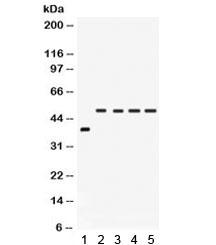 NSJ/IRF2 Antibody (R31965)/ R31965/ 100 ug