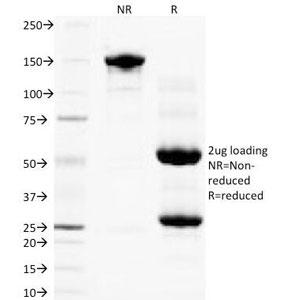 NSJ Bioreagents/PLGF Antibody /100 ug/V2223SAF-100UG