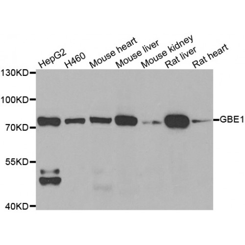 Abbexa/1,4-Alpha-Glucan-Branching Enzyme (GBE1) Antibody/abx005061/abx005061-20 µl