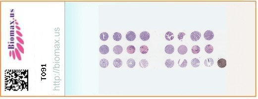 biomax/T091 Endometrial cancer test tissue array, with normal endometriual tissue as control, including TNM, clinical stage and pathology grade, 6 cases/24/T091