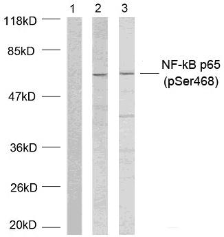 enogene/PDK1 (Phospho-Ser241) Antibody/100μg/100μl/E011005-2