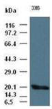 Enzolifesciences/IL-6 monoclonal antibody (3H6)/ADI-905-890-100/100µl