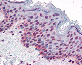 Enzolifesciences/[pThr<sup>232</sup>]Aurora B polyclonal antibody/ADI-KAP-CC203-F/200&micro;g